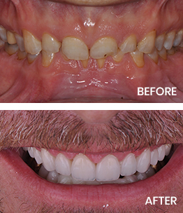 Before and after photos featuring full mouth reconstruction (crowns)